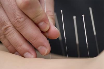 {756F7807-B33C-43A4-8375-8BD1D7A59770}_medicina-alternativa-acupuntura-bom-retiro