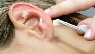 acupuntura-auricular_img-01